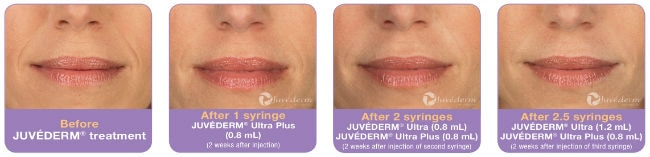 juverderm side by side