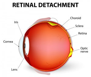 retinaldetachment